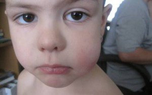 Распухла щека у ребенка